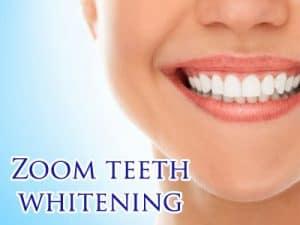 Teeth-Whitening-Service-Winter-Park-FL-1